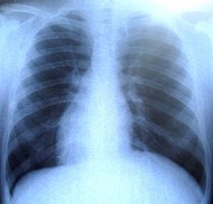 De geschiedenis van een longontsteking